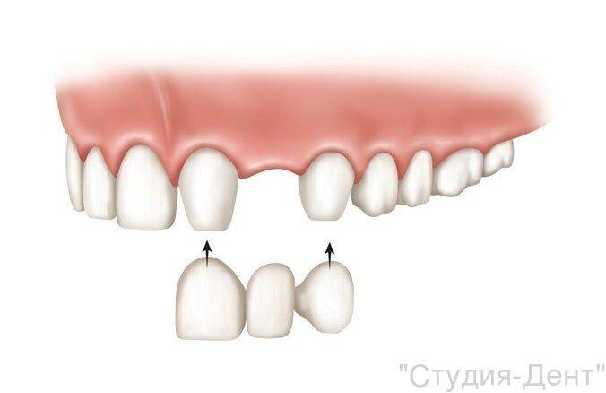 Аналог имплантации зубов