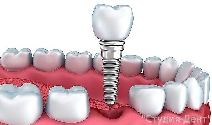 Что нужно знать про имплантацию зубов, мифы, правда
