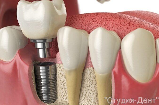 Гарантия на зубные импланты