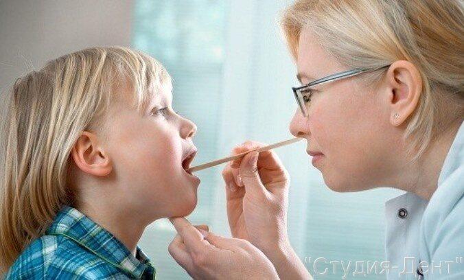 Как вылечить стоматит у ребенка