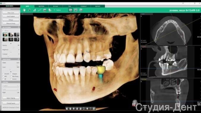 Компьютерная томография зубов зачем нужна