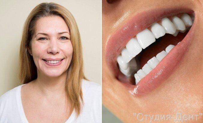 Новые зубы за один день