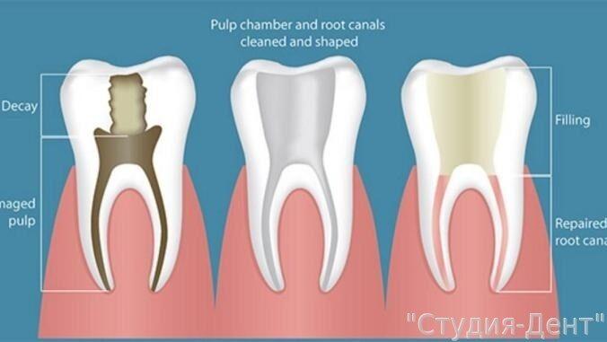 Перепломбировать зуб