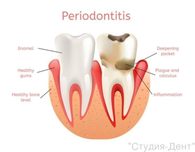 periodontitis-treatment