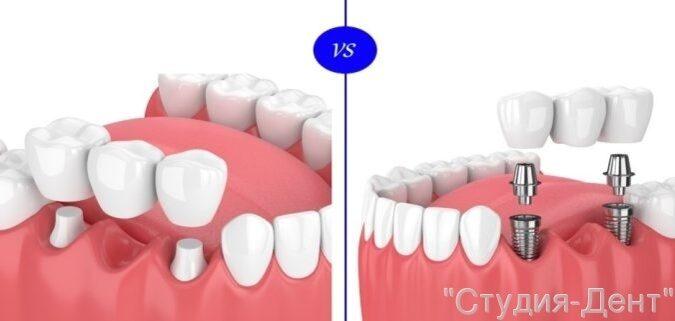 Протезировать на зубах или имплантах