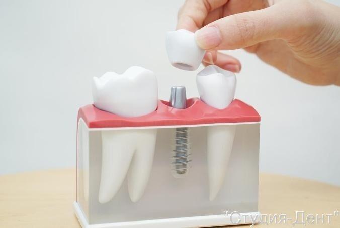 Русские и зарубежные зубные импланты