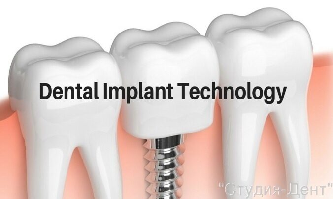 Современные технологии в имплантации зубов