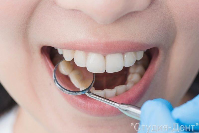 Важно сохранить все коренные зубы