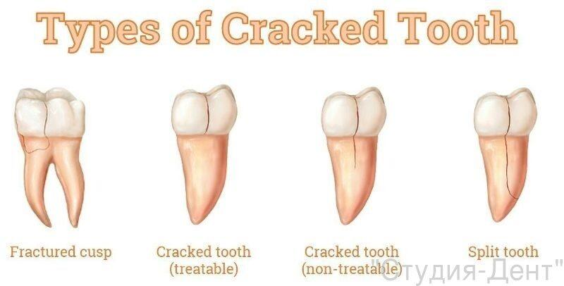 Виды перелома зубов