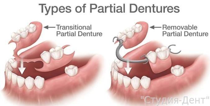 Зубные протезы какие бывают
