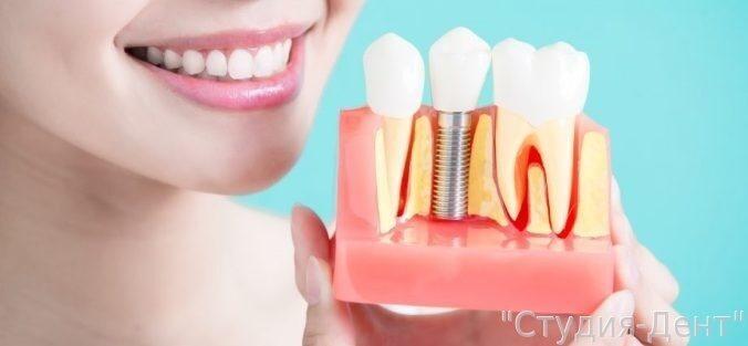Плюсы и минусы зубных имплантатов